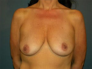 Mastopexy Gallery - Patient 4709860 - Image 1