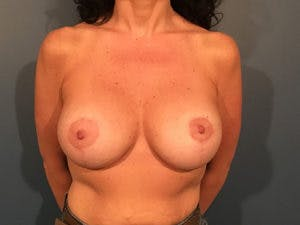 Mastopexy Gallery - Patient 4709860 - Image 2