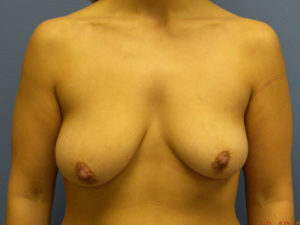 Mastopexy Gallery - Patient 4709861 - Image 7