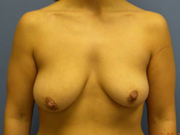 Mastopexy Gallery - Patient 4709861 - Image 1