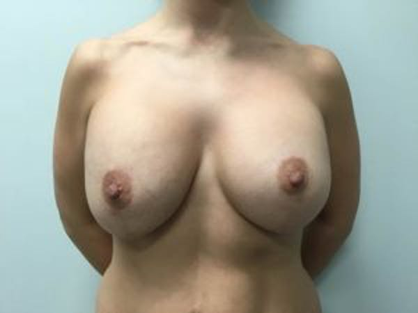 Mastopexy Gallery - Patient 4709861 - Image 2