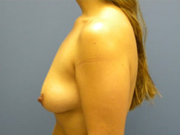 Mastopexy Gallery - Patient 4709861 - Image 3