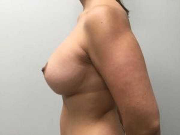 Mastopexy Gallery - Patient 4709861 - Image 4