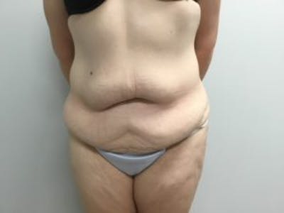Tummy Tuck (Abdominoplasty) Gallery - Patient 4710438 - Image 1