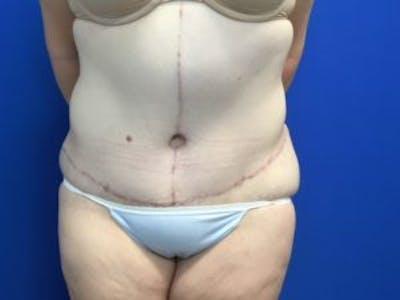 Tummy Tuck (Abdominoplasty) Gallery - Patient 4710438 - Image 2