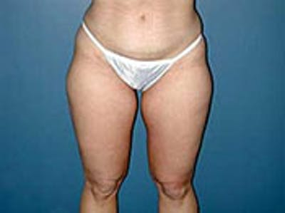 Thigh Lift Gallery - Patient 4595175 - Image 1