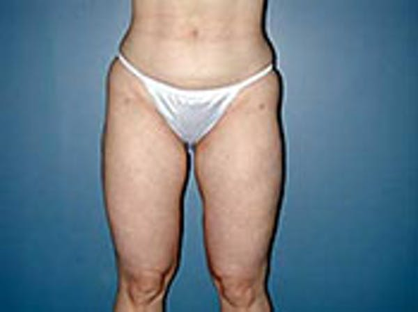 Thigh Lift Gallery - Patient 4595175 - Image 2