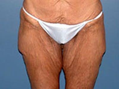 Thigh Lift Gallery - Patient 4595176 - Image 1