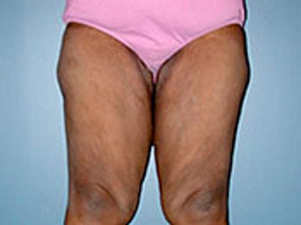 Thigh Lift Gallery - Patient 4595178 - Image 1
