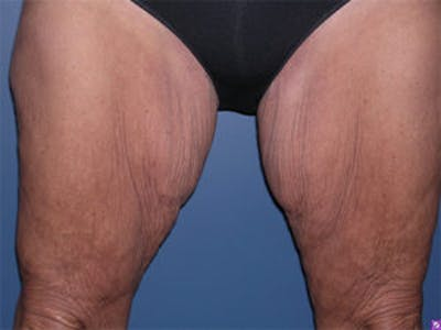 Thigh Lift Gallery - Patient 4595179 - Image 1