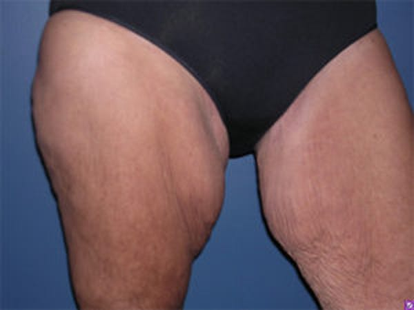 Thigh Lift Gallery - Patient 4595179 - Image 3