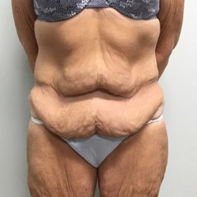 Tummy Tuck (Abdominoplasty) Gallery - Patient 4710439 - Image 1
