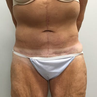 Post Bariatric Gallery - Patient 4595180 - Image 2