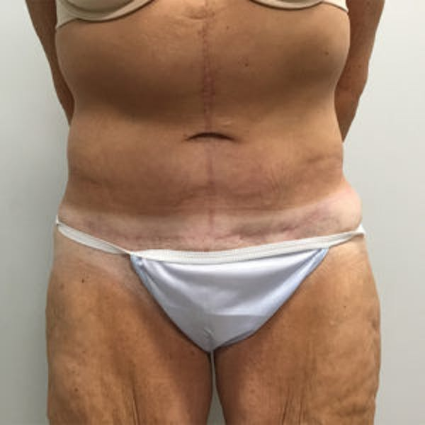 Tummy Tuck (Abdominoplasty) Gallery - Patient 4710439 - Image 2