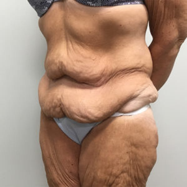 Post Bariatric Gallery - Patient 4595180 - Image 3