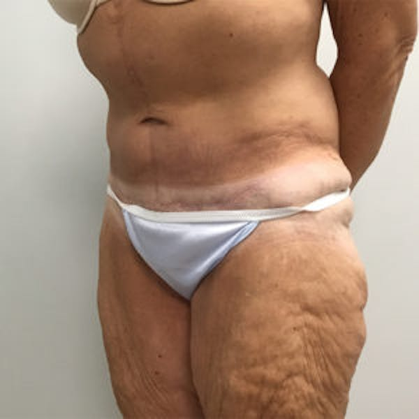 Tummy Tuck (Abdominoplasty) Gallery - Patient 4710439 - Image 4