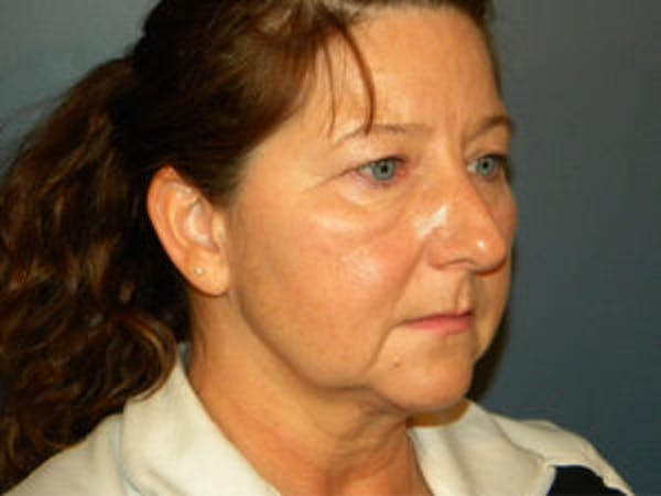 Face Lift Gallery - Patient 4595193 - Image 1