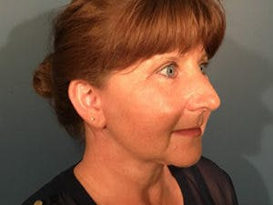 Face Lift Gallery - Patient 4595193 - Image 2