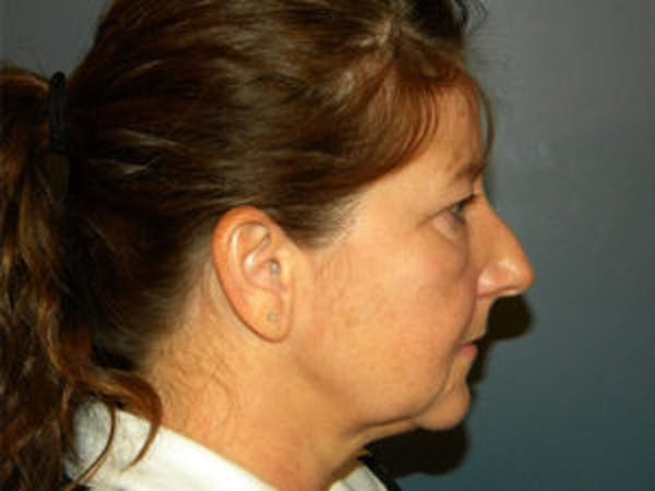 Face Lift Gallery - Patient 4595193 - Image 3