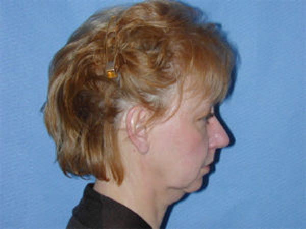 Face Lift Gallery - Patient 4595194 - Image 3