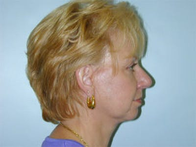Face Lift Gallery - Patient 4595194 - Image 4