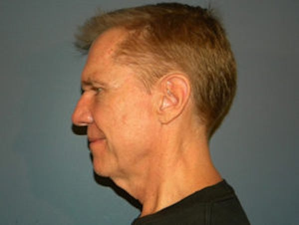 Face Lift Gallery - Patient 4595197 - Image 3
