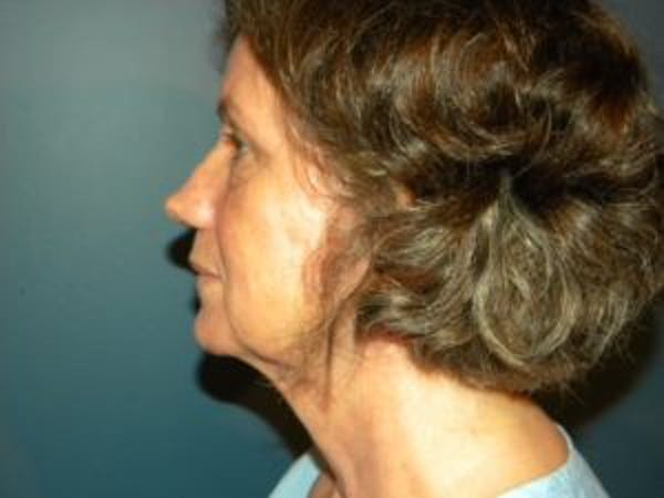 Face Lift Gallery - Patient 4595200 - Image 3