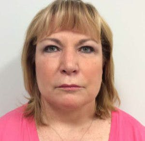 Face Lift Gallery - Patient 4595208 - Image 2