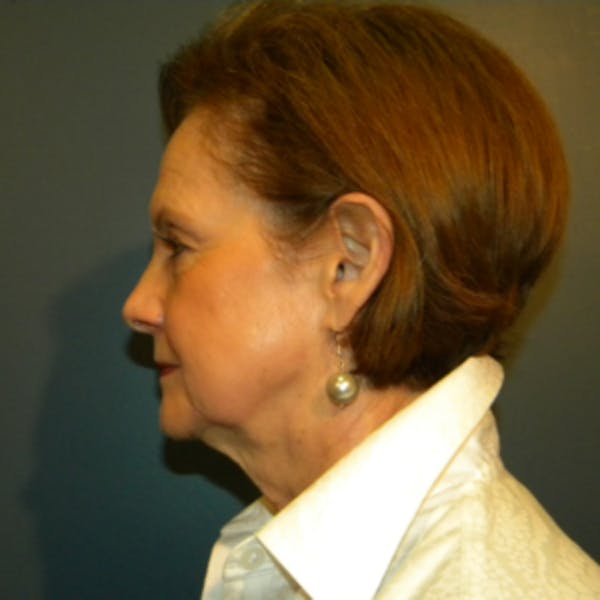 Face Lift Gallery - Patient 4595211 - Image 7