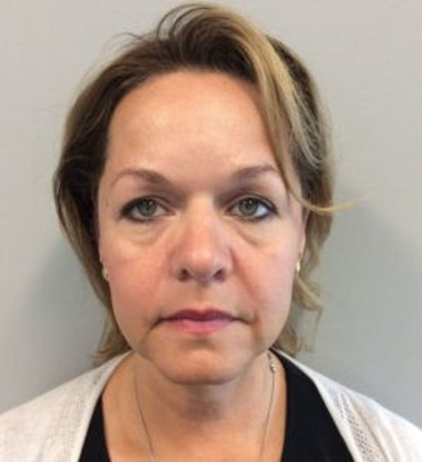 Face Lift Gallery - Patient 4595213 - Image 1