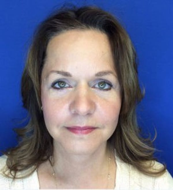 Face Lift Gallery - Patient 4595213 - Image 2
