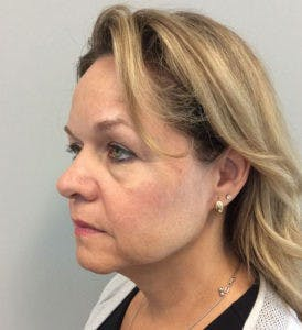 Face Lift Gallery - Patient 4595213 - Image 3