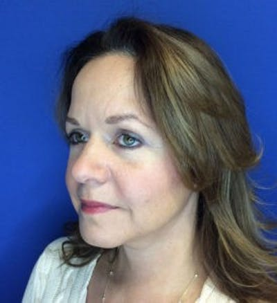 Face Lift Gallery - Patient 4595213 - Image 4