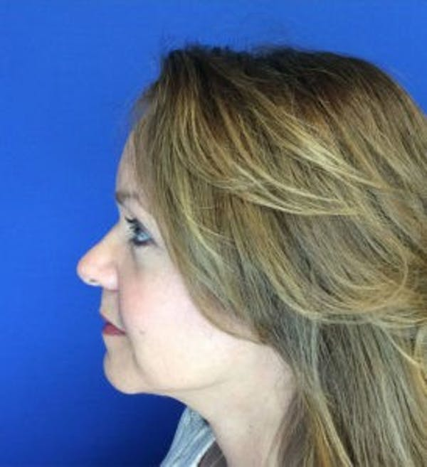 Face Lift Gallery - Patient 4595213 - Image 6