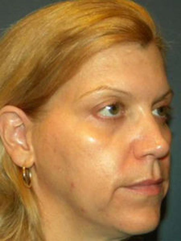Face Lift Gallery - Patient 4595215 - Image 3