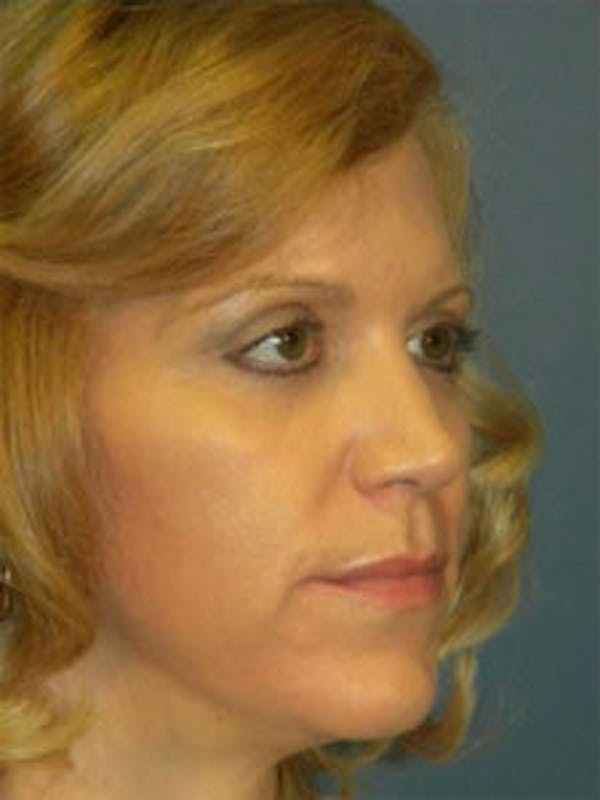 Face Lift Gallery - Patient 4595215 - Image 4