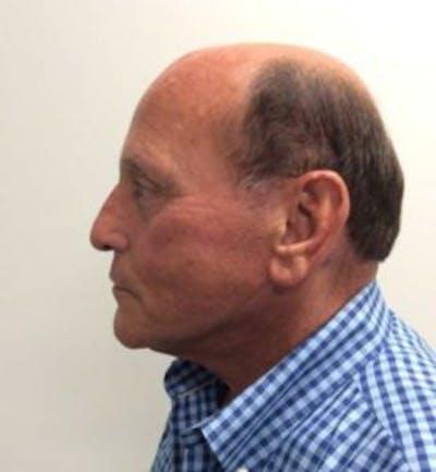Blepharoplasty Gallery - Patient 4710026 - Image 6