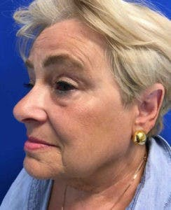 Face Lift Gallery - Patient 4595227 - Image 3