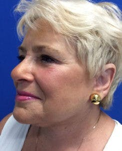 Face Lift Gallery - Patient 4595227 - Image 4