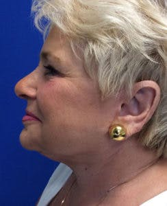 Face Lift Gallery - Patient 4595227 - Image 6