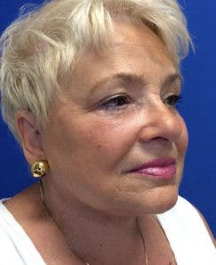 Face Lift Gallery - Patient 4595227 - Image 8