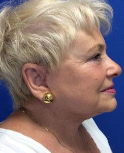 Face Lift Gallery - Patient 4595227 - Image 10