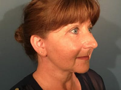 Laser Skin Resurfacing Gallery - Patient 4595244 - Image 2