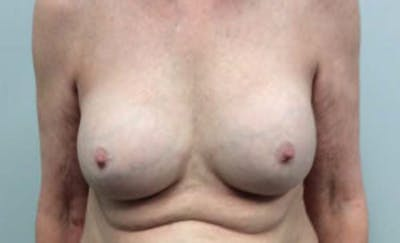 Breast Implant Removal and Replacement Gallery - Patient 4598836 - Image 1