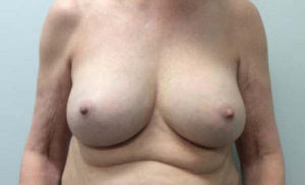 Breast Implant Removal and Replacement Gallery - Patient 4598836 - Image 2