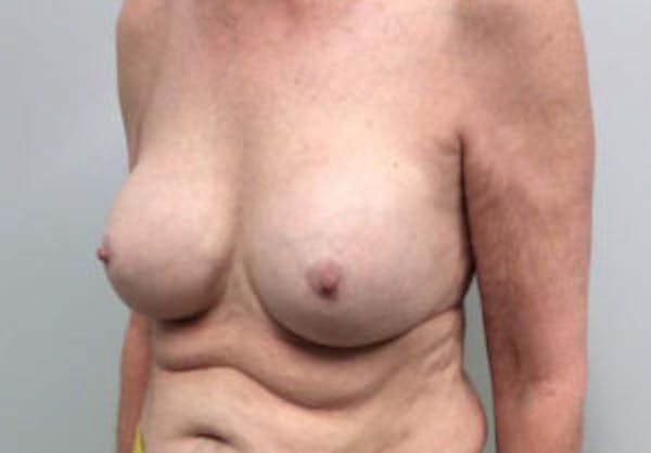 Breast Implant Removal and Replacement Gallery - Patient 4598836 - Image 3
