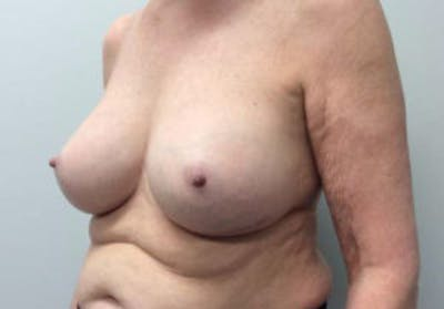 Breast Implant Removal and Replacement Gallery - Patient 4598836 - Image 4