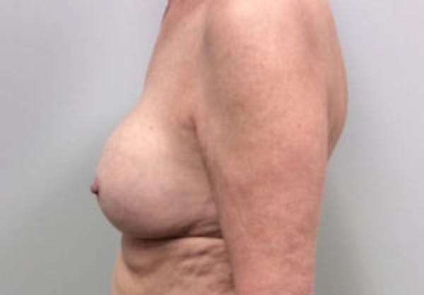 Breast Implant Removal and Replacement Gallery - Patient 4598836 - Image 5