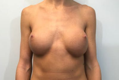 Breast Implant Removal and Replacement Gallery - Patient 4598848 - Image 1