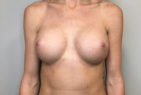 Breast Implant Removal and Replacement Gallery - Patient 4598848 - Image 2